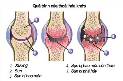 trieu-chung-benh-thoai-hoa-khop