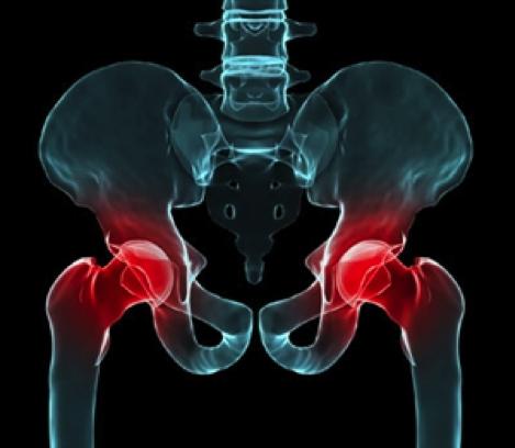 Tổng hợp các cách điều trị viêm khớp háng toàn diện - hiệu quả