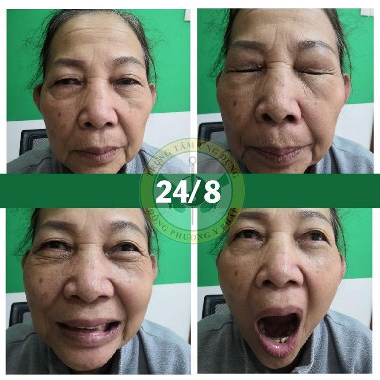 Cô Đỗ Lá sau khi trị liệu 3 buổi